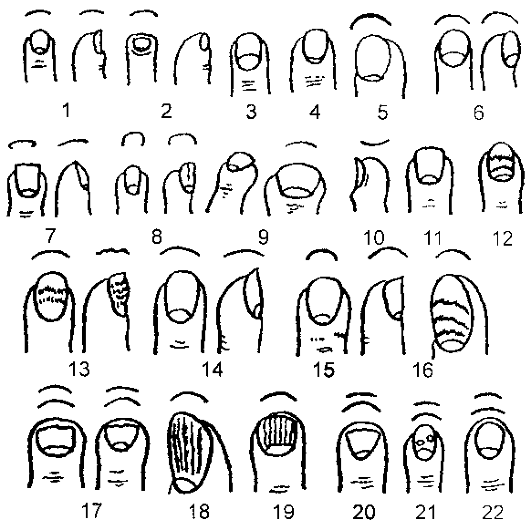 Как лечить псориаз ногтей на руках и ногах