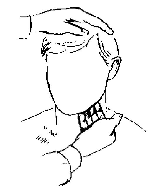 Пцр вирус папилломы человека впч тип 16