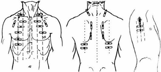 Дыхательная система: сравнительная перкуссия легких Схема топографические линии грудной клетки