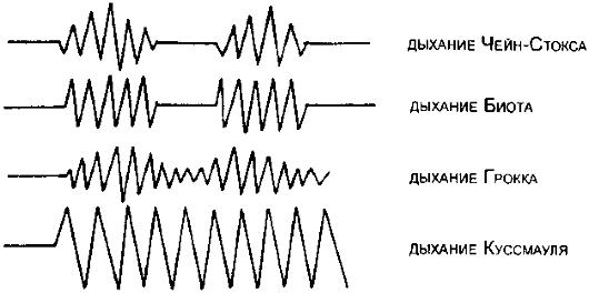 Схема типов нарушения дыхания.