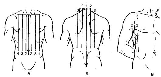 Топография грудной клетки. Проекция органов на грудную Схема топографические линии грудной клетки