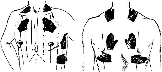 Схема исследования голосового