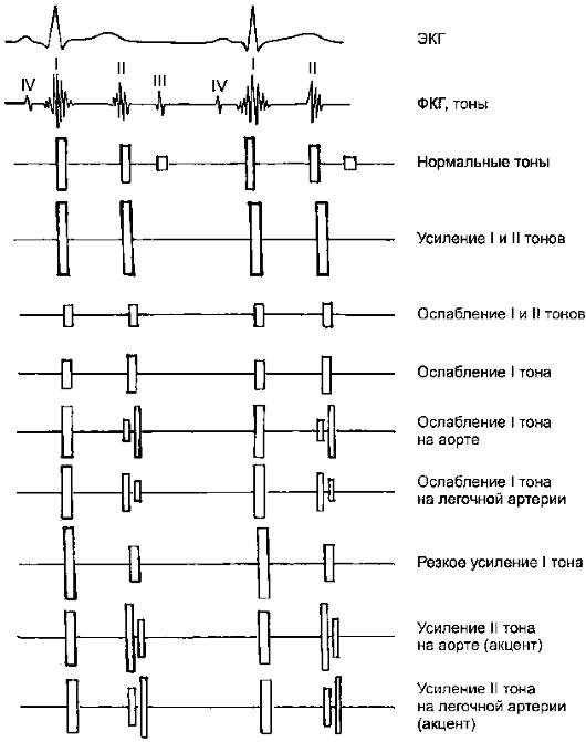 Протодиастола фото