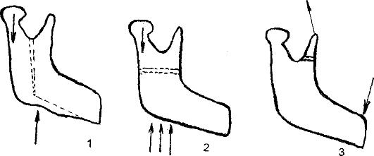 Повреждения нижней челюсти судебная медицина замена термостата qr20