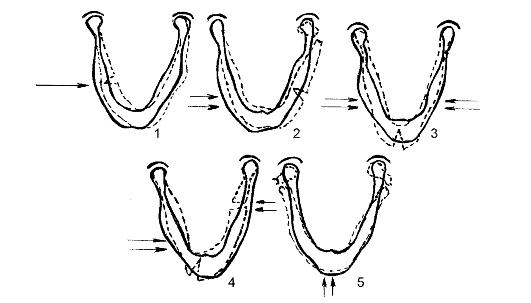 Схема механизмов переломов