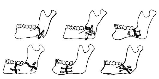 костного шва (схема).