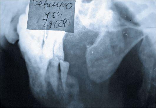 Может ли быть ложный сустав челюсьи что такое суставные поверхности конгруэнтны