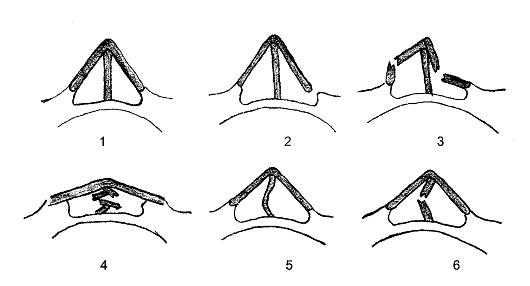 Схема вариантов перелома