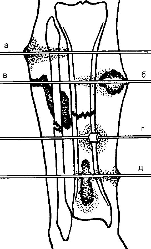 Схема спицевого остеомиелита: