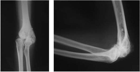 Фото деформирующего артроза локтевого сустава конский бальзам для суставов отзывы