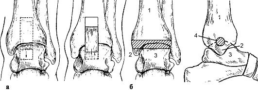 Чем лечить стержневой мозоль на ноге
