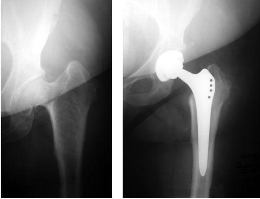 Эндопротезирование суставов до и после остеопороз 2 степени тазобедренного сустава