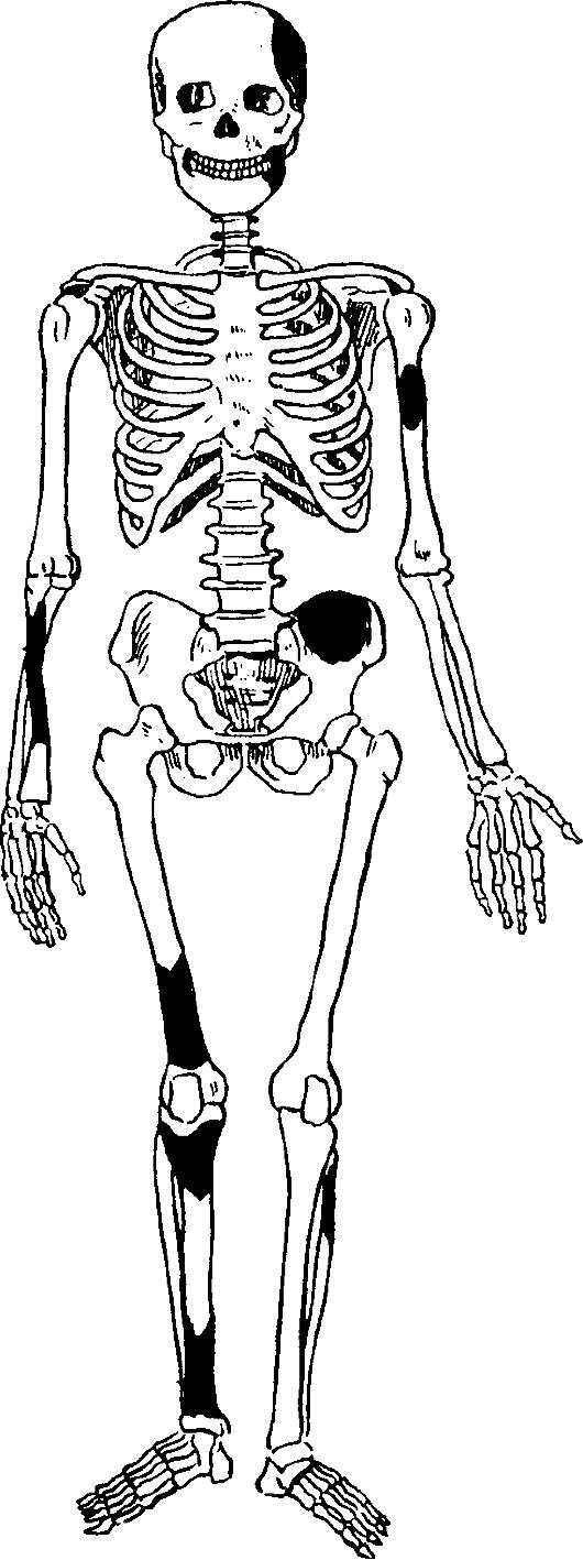 Миеломатоз фото