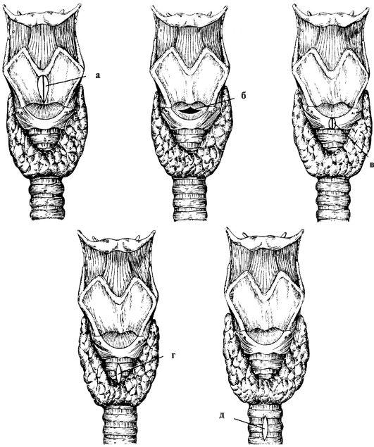 Тиреотомия фото
