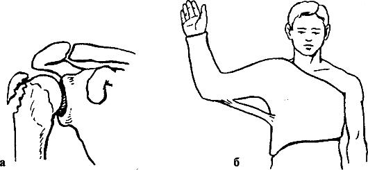 гипсовой повязкой (рис.