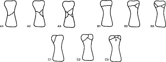 Внутрисуставные околосуставные переломы чебоксарская клиника по замене суставов