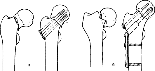 методам лечения переломов