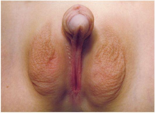 фото необычных половых губ женщины