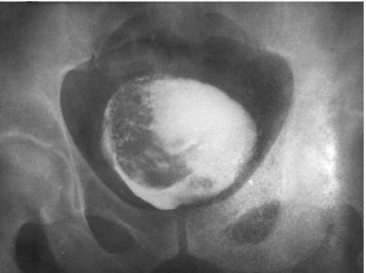 Рак предстательной железы 3 степень