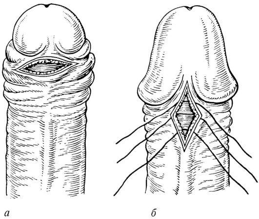 Удаление волос на члене кремом