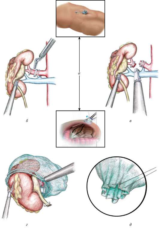 Нефрэктомия фото