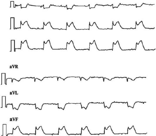 Лечение артериальной гипертензиив подострой ст Инфаркта миокарде без q