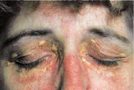 Цирроз печени: фото больных людей, печени, языка, цвета кала, ладоней, цвета лица