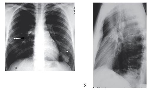 ситуационная задача бронхиальная астма с ответами