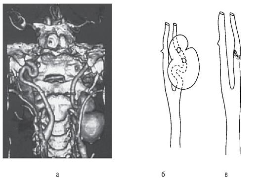 стеноз сонной артерии 25 нужно пить статины