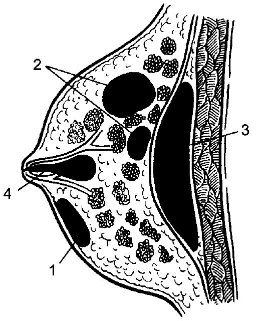 Перикардиотомия фото