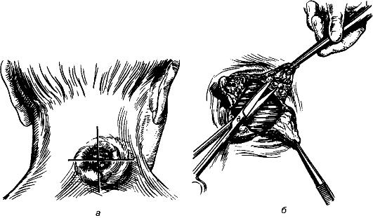 Рассечение карбункула (а) и