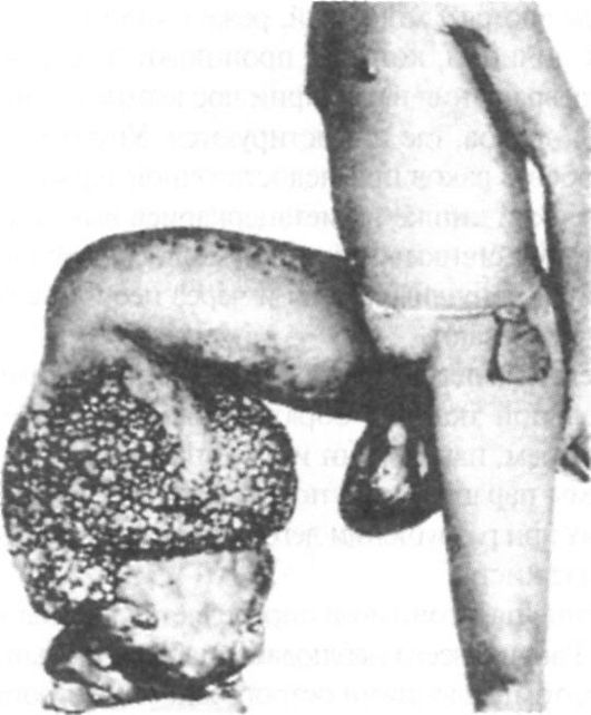 Панкреатотомия фото