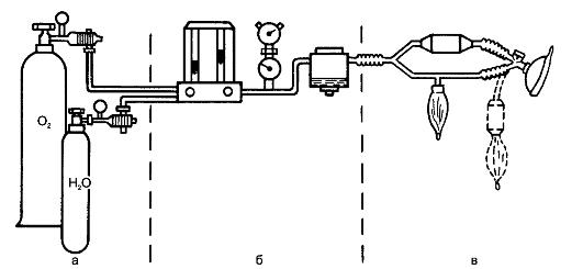 Аппарат для наркоза (схема): а