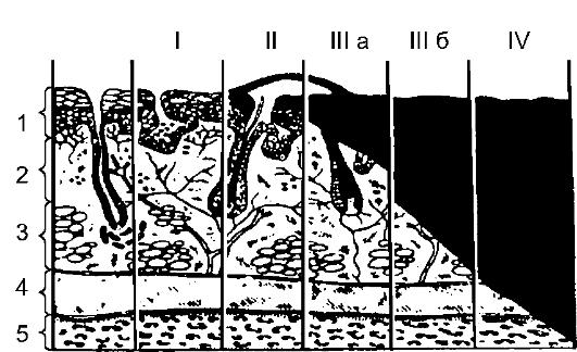 ожога: 1 - эпидермис;