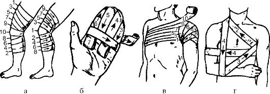 Техника наложение повязки 8 ми образной на голеностопный сустав голеностопный сустав на латыни