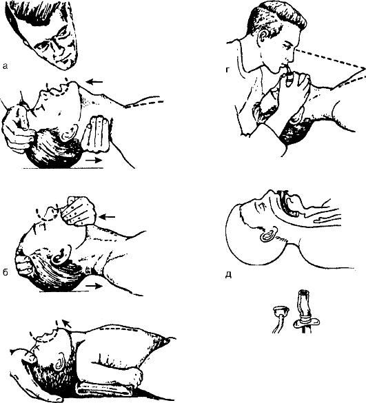 Виды искусственного дыхания: а