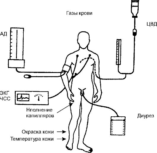 ЦВД, газовый состав крови